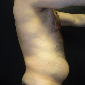 Manhattan liposuction before 17